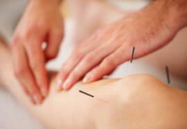 GUELPH REHAB ACUPUNCTURE