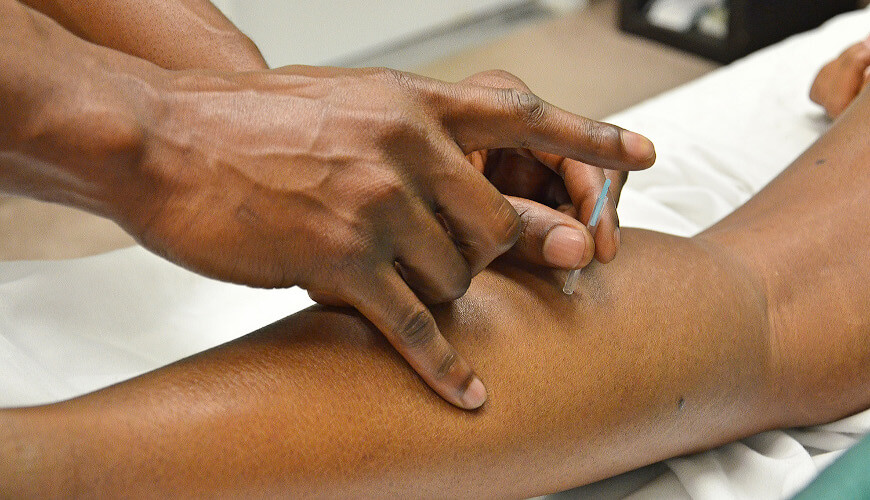 Picture of therapist putting in acupuncture needle